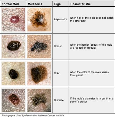 Photo - Skin Cancer - Malignant Melanoma Sydney 1 - SAMPLE ONLY