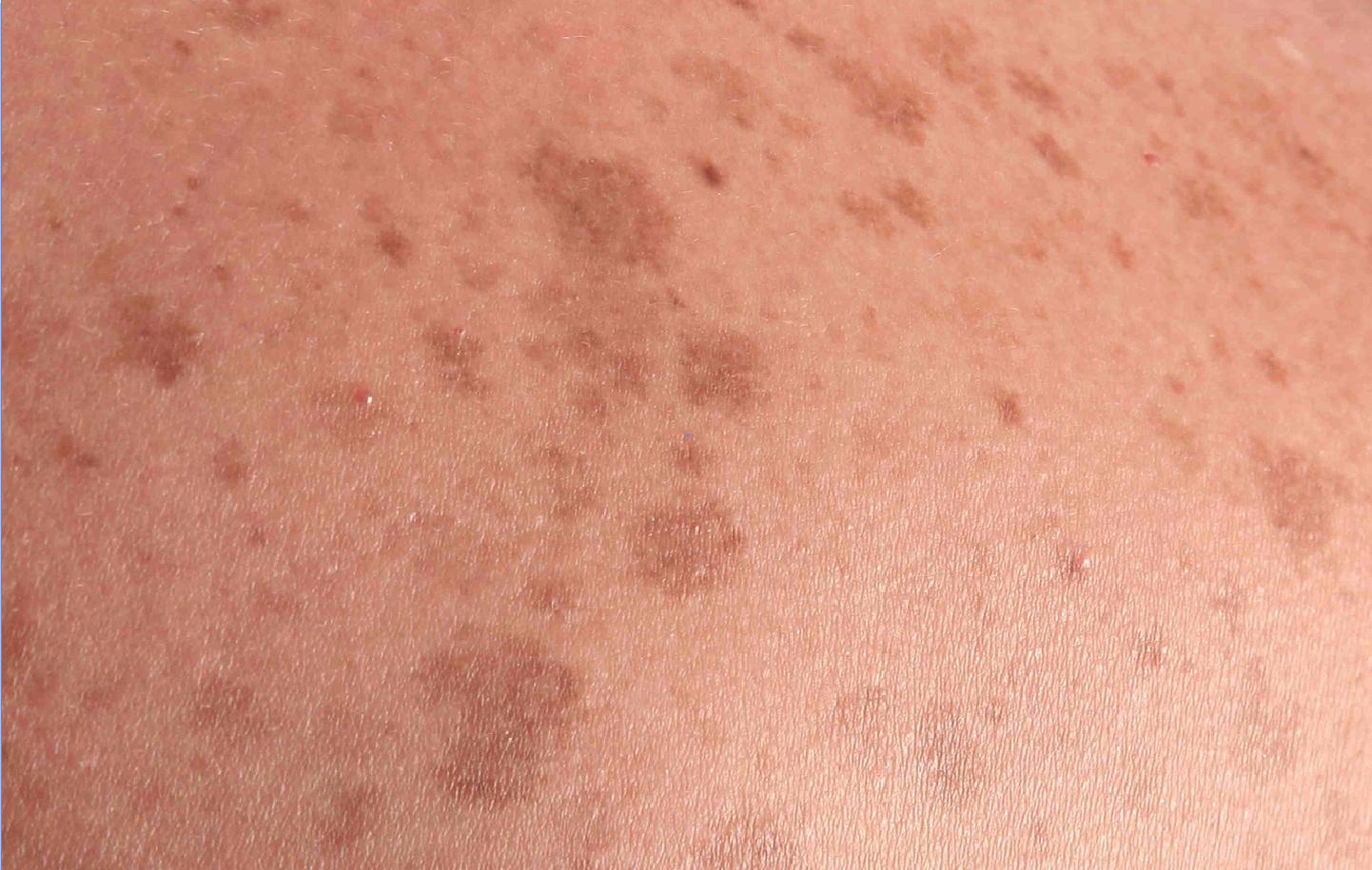 Poikiloderma of Civatte - Dermatopedia