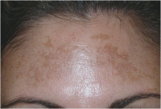 El cuidado de la piel con el acné y los tiempos extendidos