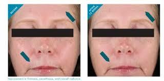 skin resveratrol resultados