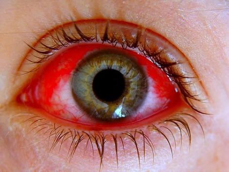 lesion ocular