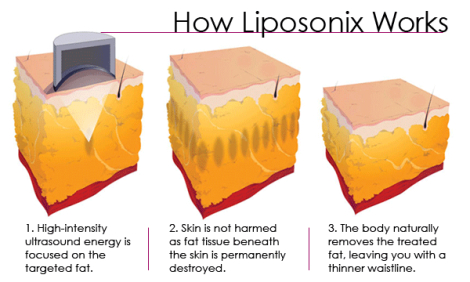 liposonix-works1