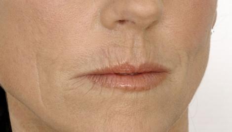 labios arruguitas