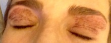 ojos cicatriz 1