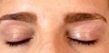 ojos cicatriz