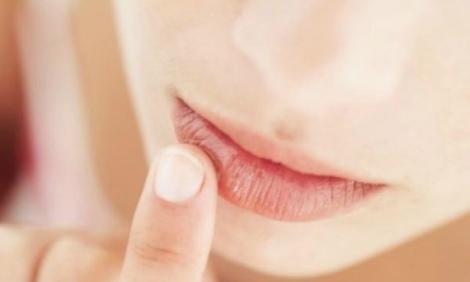 labios-y-nariz-agrietados