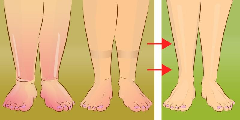 piernas hinchadas 1.jpg